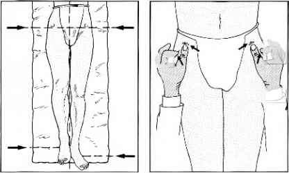 Trendelenburg Position Nerves
