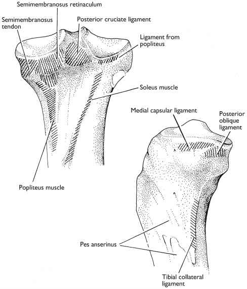 Medial Tibia Attachments