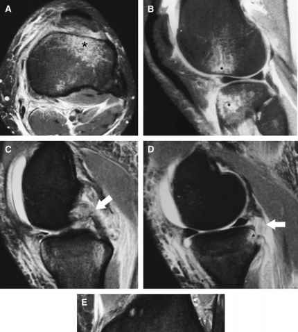 Hyperextension Knee Mri