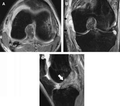 Mri Fse Bone Marrow Edema
