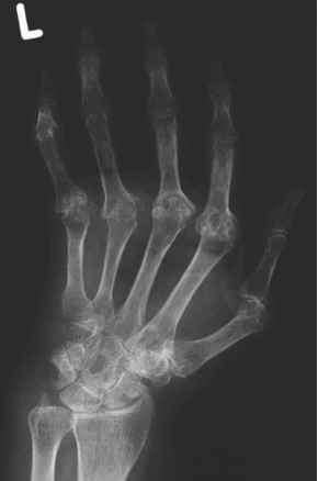 Hill Sachs Defect Radiograph