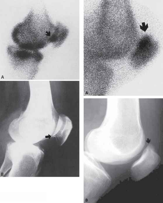 Osteoarthritis The Knee Osteophytes