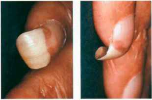 Pictures Nail Disorders Trumpet