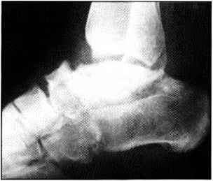 Footballers Ankle