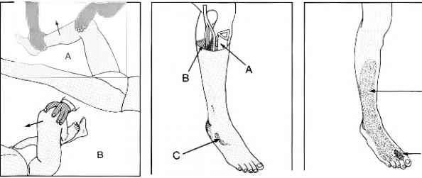 dermatome - rheumatoid arthritis - arthritis research, Muscles