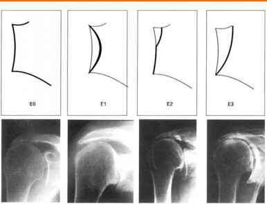 Rotator Cuff Arthropathy Classification
