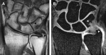 Handgelenksynovektomie und radiokarpale Stabilisierung durch Sehnentransfer