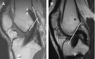 Mri Posterior Cruciate Ligament Demonstrates Increased