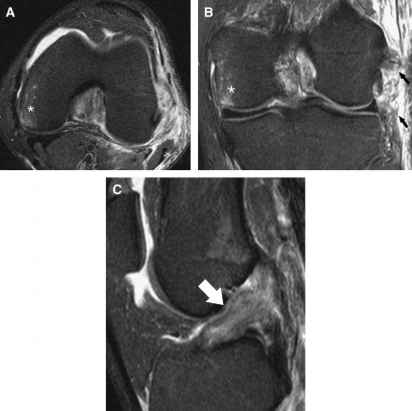 Sports Related Injuries of the Knee An Approach to MrI