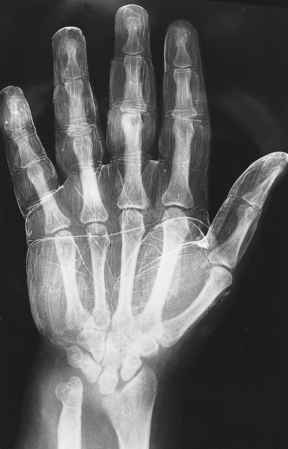 Turner Syndrome Drumstick Phalanges