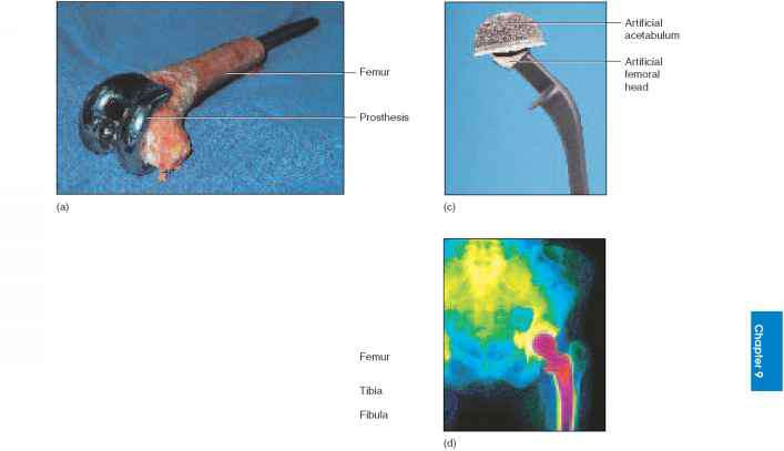 Pictures Artificial Femoral Head